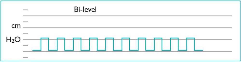 bi-level-system